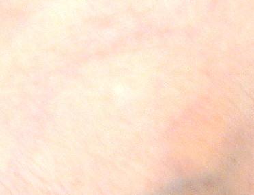 2017.10.17 Scar